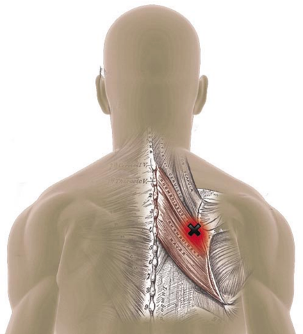 Rhomboid Muscles Trigger Points