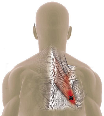 Rhomboid Muscles - Trigger Point Referred Pain