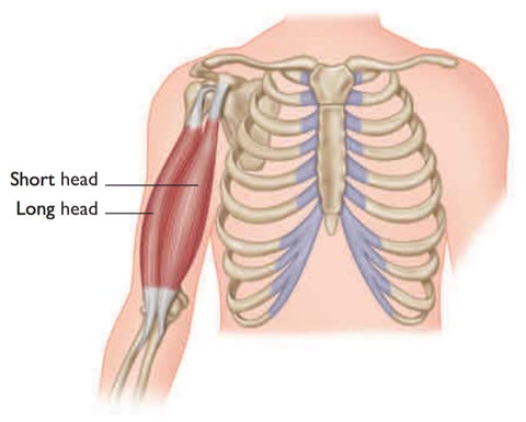 Biceps Brachii Tear