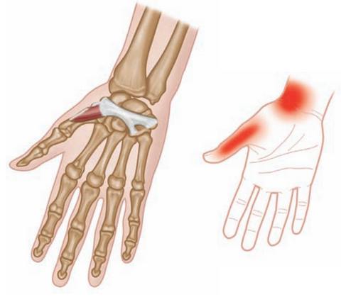 Opponens Poliicis - typical referred pain pattern