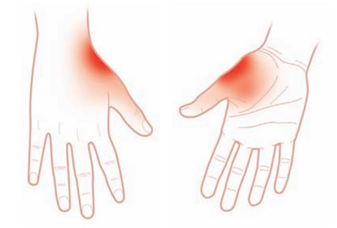 Adductor pollicis Trigger point referred pain