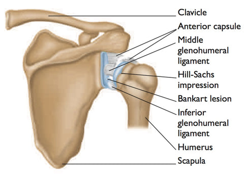 Dislocation of the shoulder