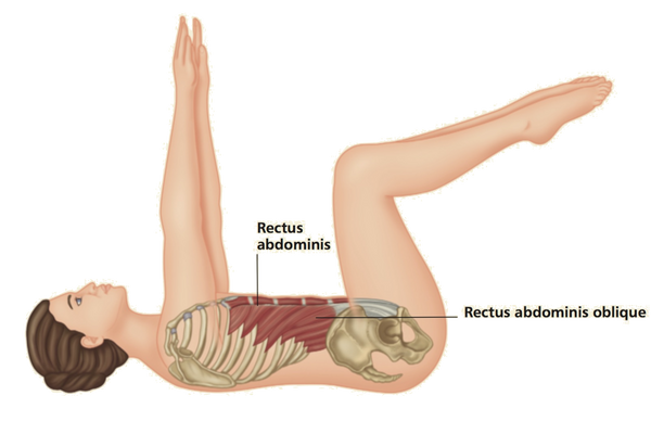 Rectus Abdominis Trigger Point Treatment