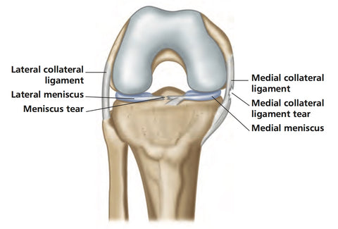 Knee Joint MCL Pain and Meniscal Pain