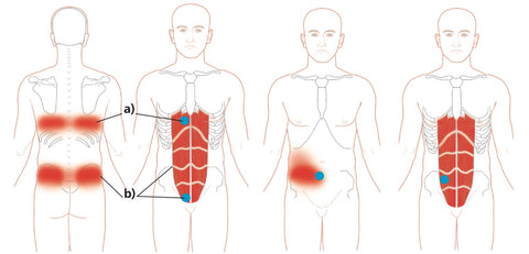 Trigger Point Therapy Treating Rectus Abdomini Niel