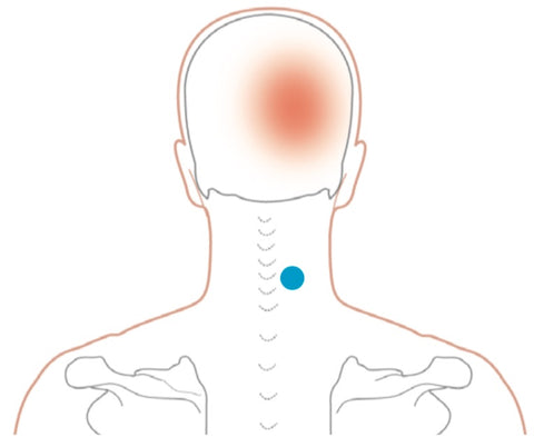 Semispinalis capitis (middle) and cervicis Trigger Points