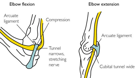 Cubital Tunnel Syndrome Trigger Points