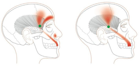 Trigger Point Therapy - Temporalis