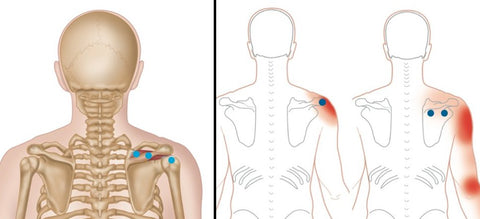 Rotator Cuff Trigger Points