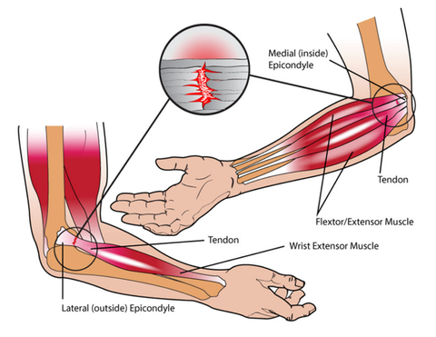Lateral and Medial Elbow Inuries