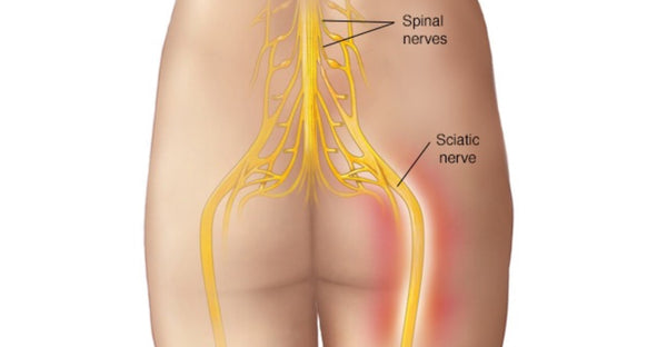 Sciatica Trigger Points