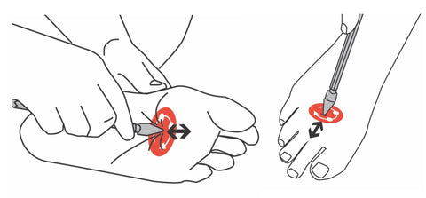 Trigger Points of the Foot