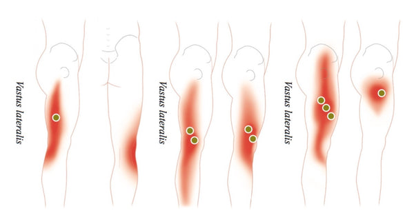 Quadriceps Common Trigger Point Sites