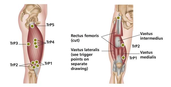 Quadriceps - Trigger Point Therapy Treatment Sites