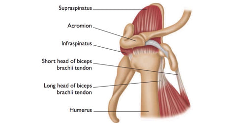 Subacromial Impingement Syndrome