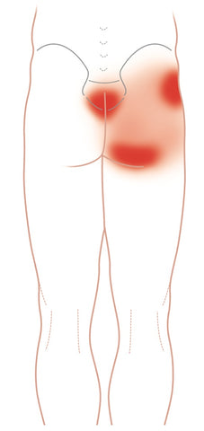 Gluteus Maximus Trigger Points