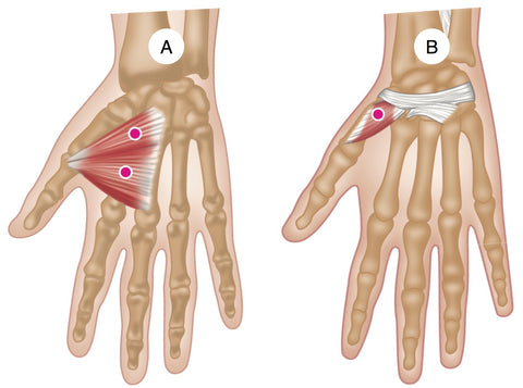 Adductor and Opponens Pollicis Trigger Points