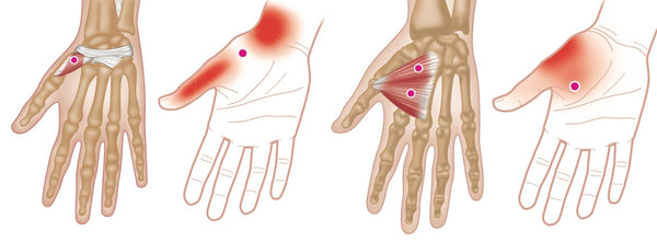 Hand and Wrist Trigger Points