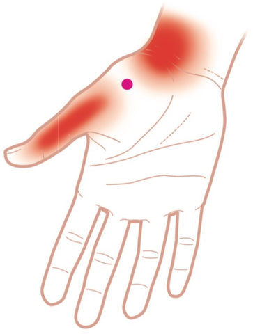 Opponens Pollicis Trigger Points