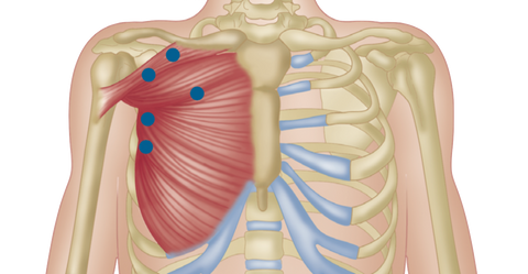 Pectoralis Trigger Points Chest Pain
