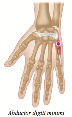 hand Muscle Trigger Points