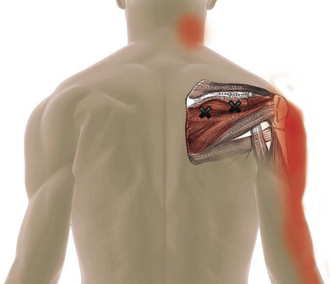 Infraspinatus Trigger Point