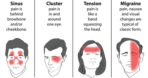 migraine headaches trigger points