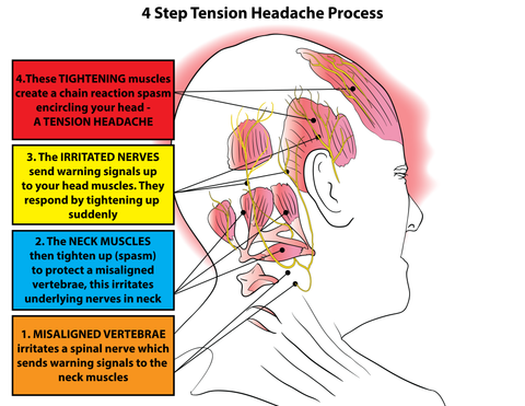Headache Trigger Points