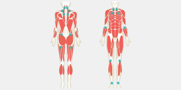 Fibromyalgia – The Complete Injury Guide