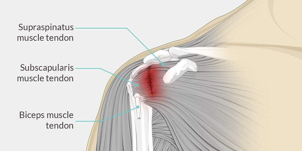 Shoulder Tendonitis - The Complete Injury Guide - Vive Health