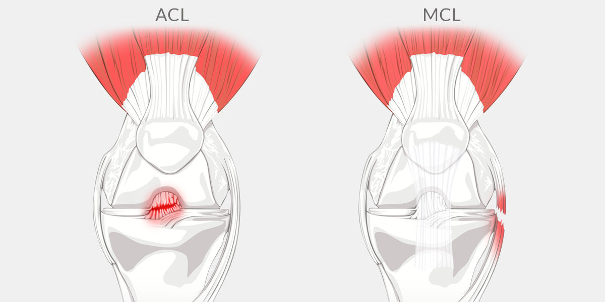 Mcl Tear - The Complete Injury Guide