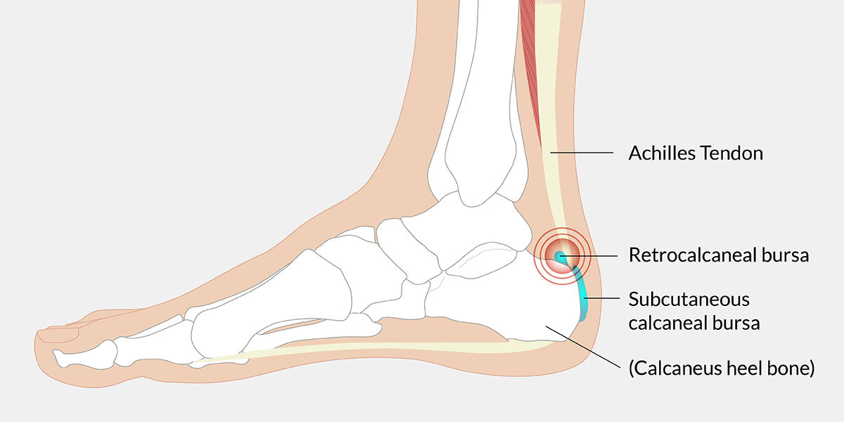 Achilles Bursitis Illustration