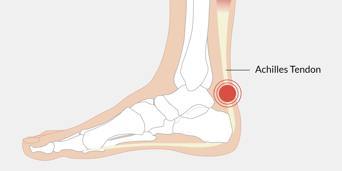 Achilles Tendonitis The Complete Injury Guide Vive Health