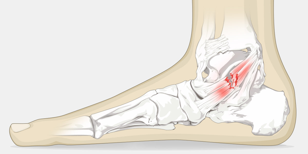 Ankle Sprain Illustration