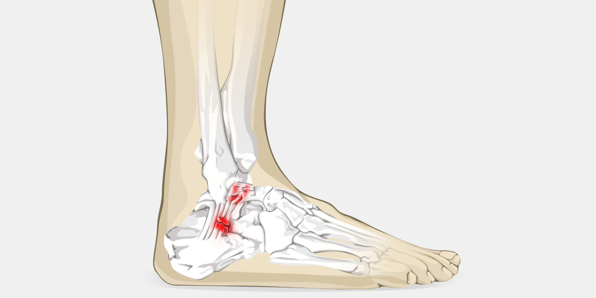 cfe0809798 Anterior Ankle Impingement - The Complete Injury Guide - Vive Health
