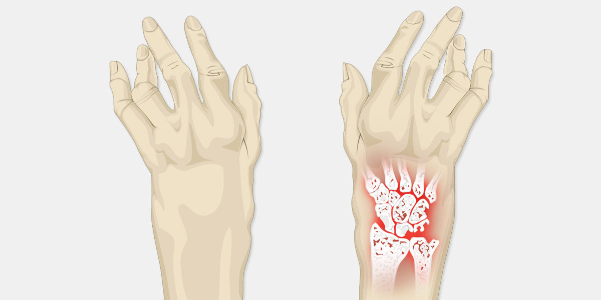 Arthritis in Wrist Illustration