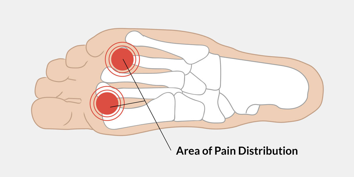 ball of foot pain