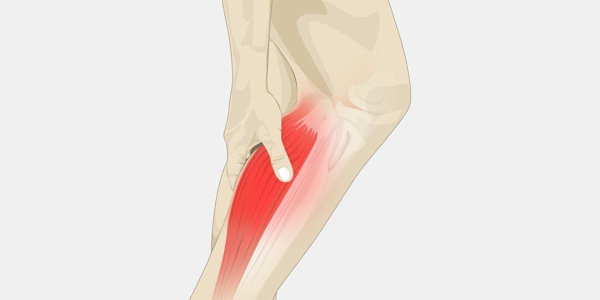 Calf Cramps Illustration
