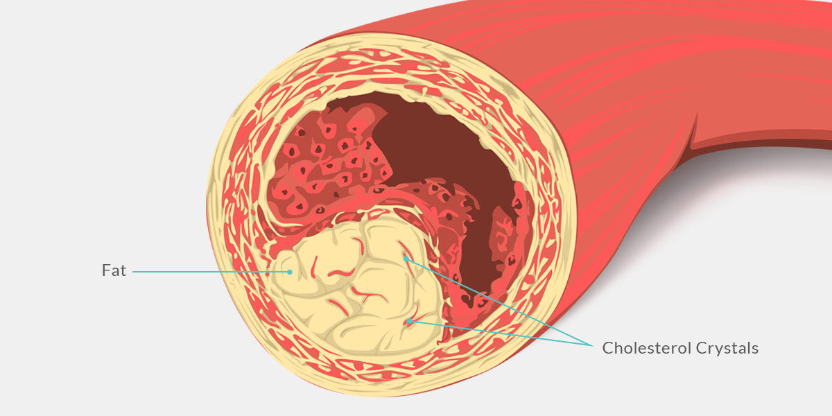Cholesterol filled artery Illustration