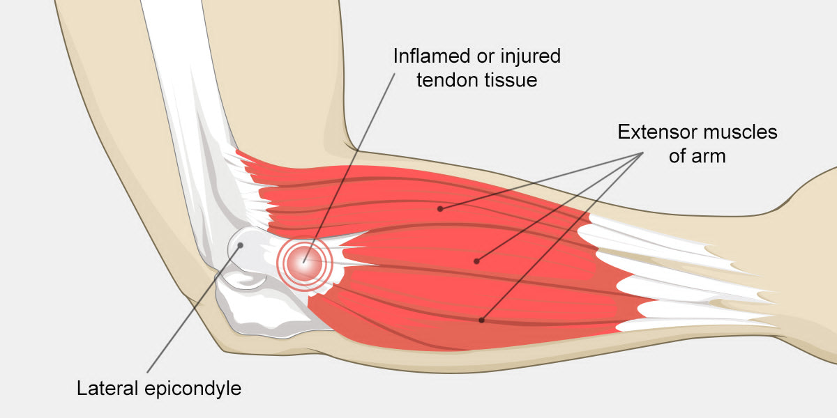 Elbow Tendonitis The Complete Injury Guide Vive Health