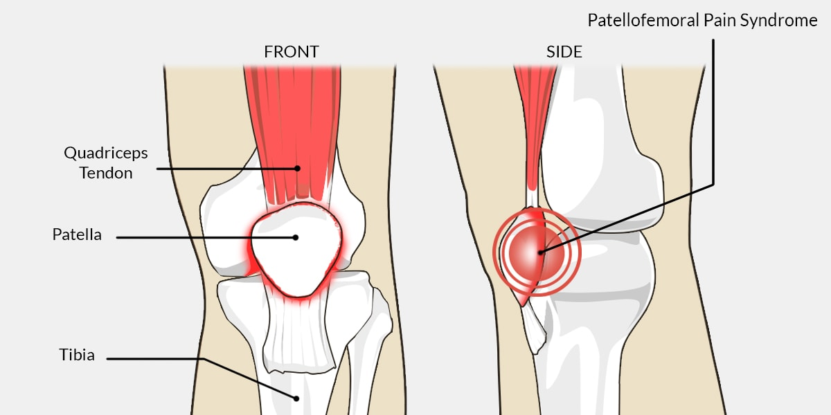 Patellofemoral Pain Syndrome - The Complete Injury Guide - Vive Health