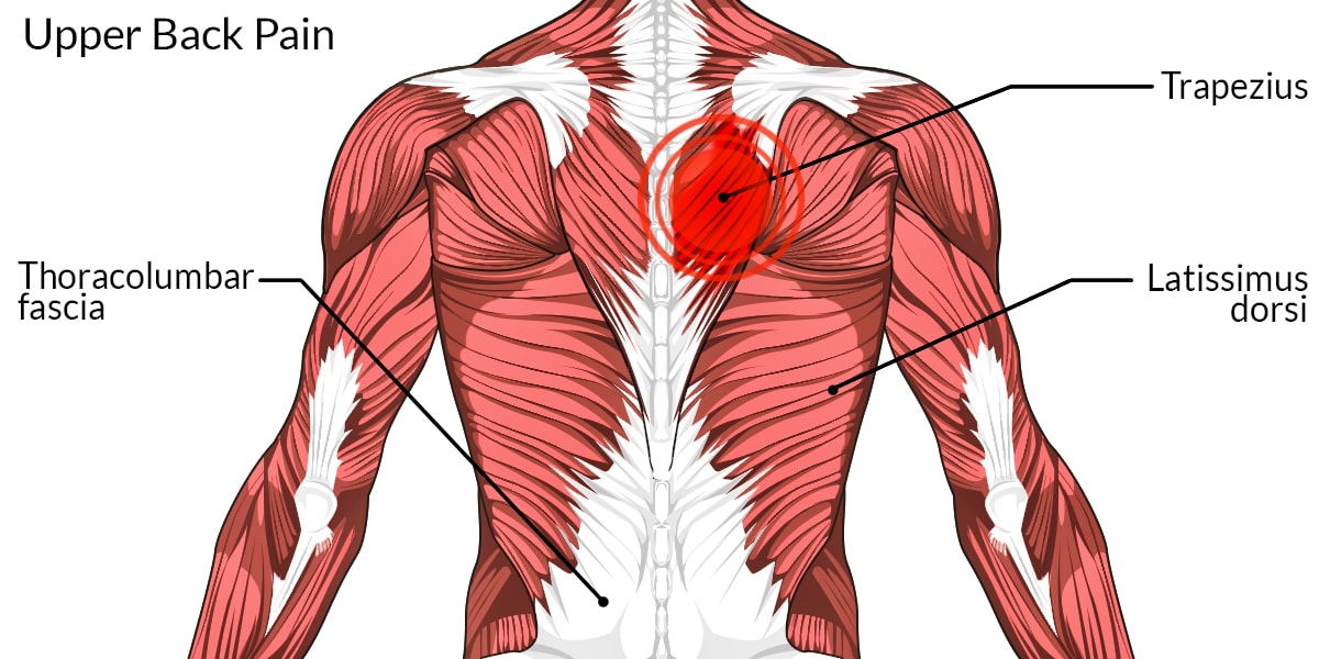 Back Muscles Diagram Pain - Schematics Wiring Diagrams •