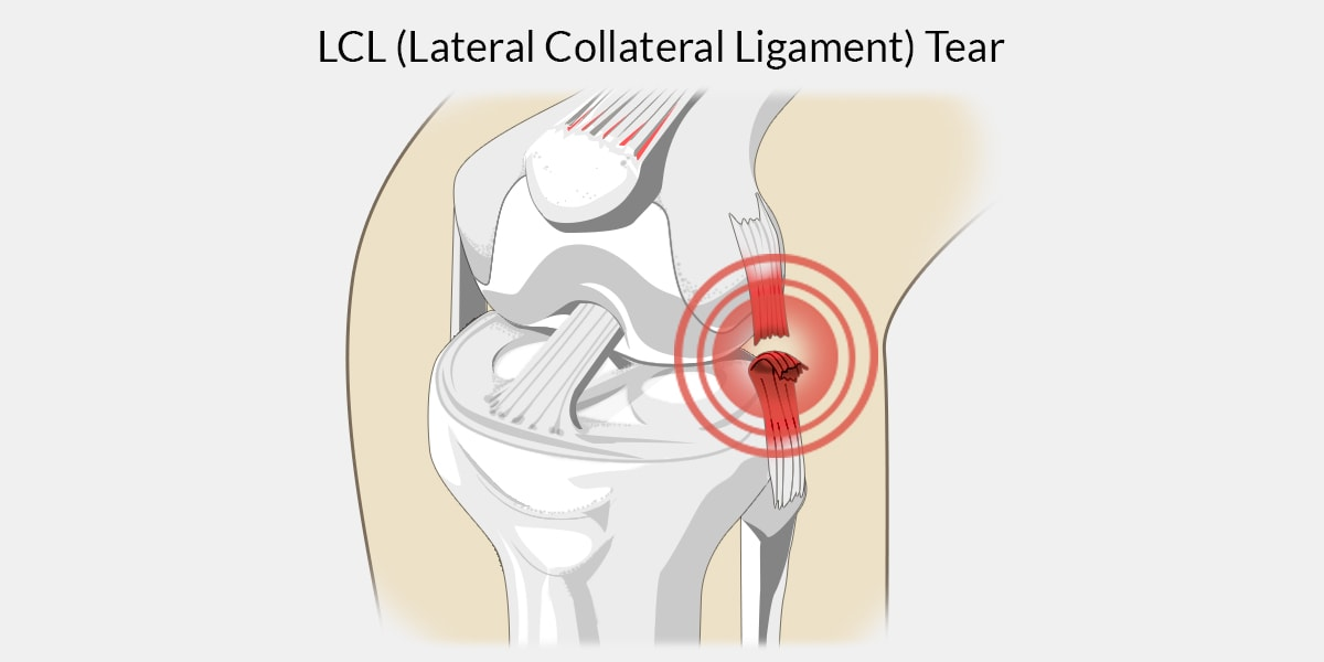 LCL Tear - The Complete Injury Guide - Vive Health