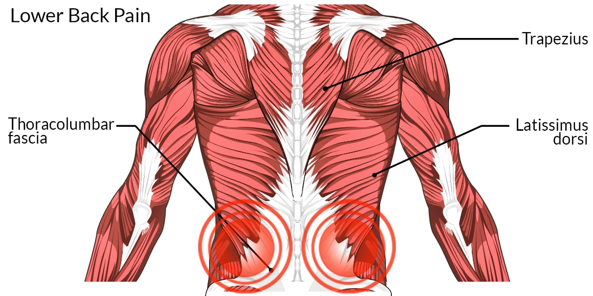 Low Back Pain Muscle Diagram Residential Electrical Symbols