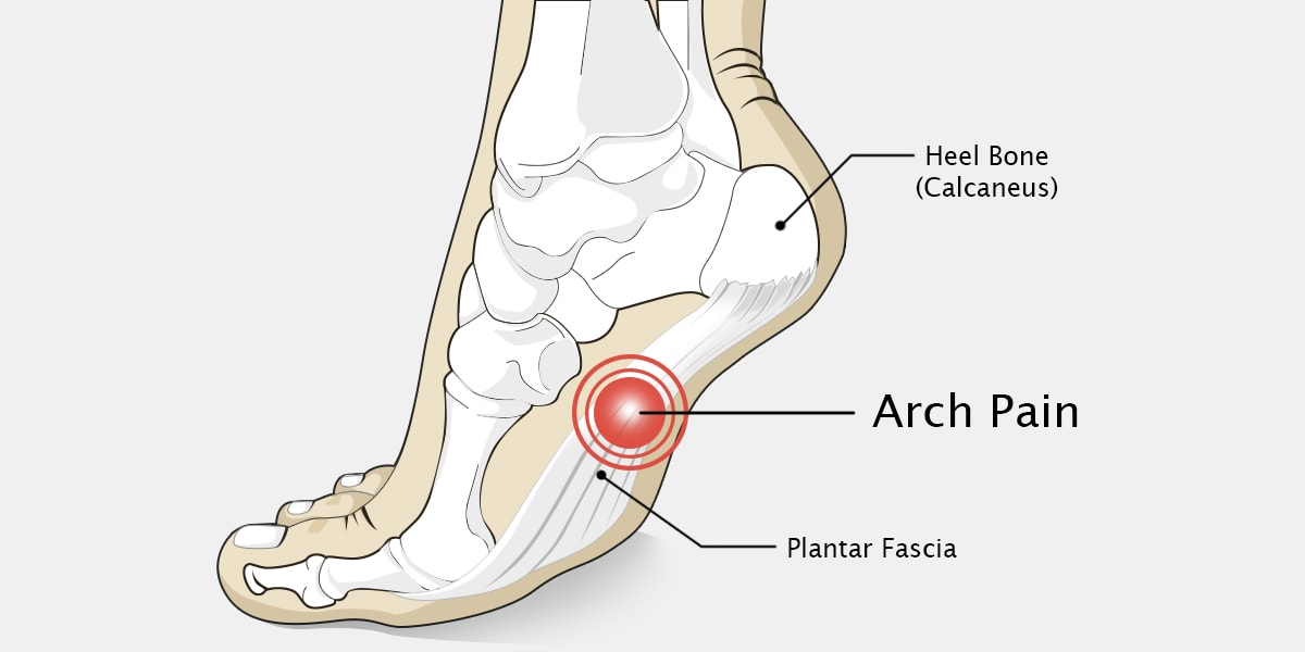 Arch Pain Diagram