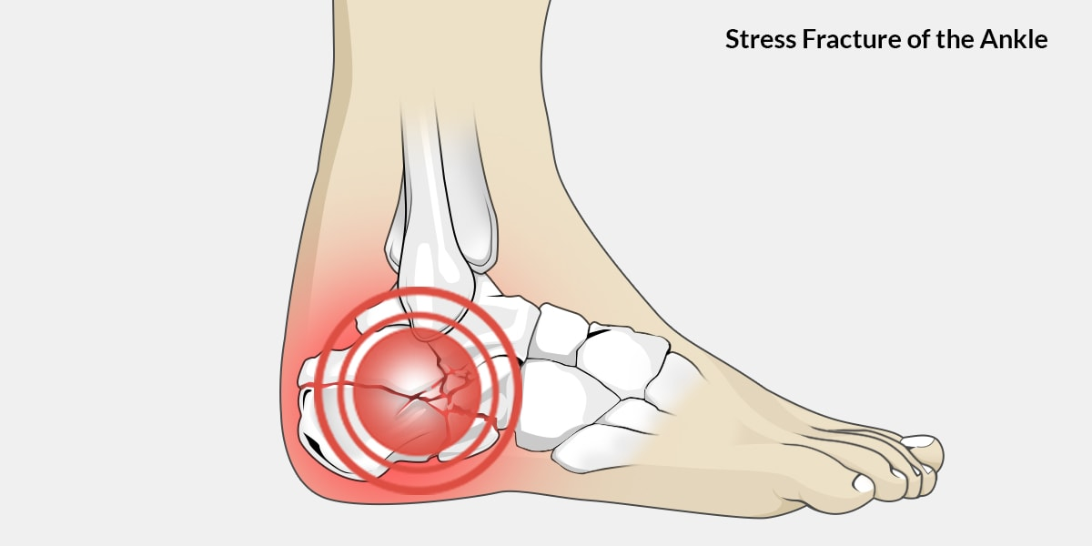 Stress Fracture Ankle The Complete Injury Guide Vive Health
