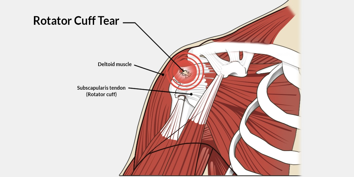 Rotator Cuff Tear – The Complete Injury Guide - Vive Health
