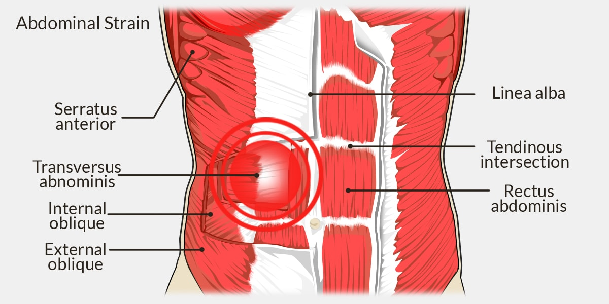 Abdominal Strain - The Complete Injury Guide - Vive Health