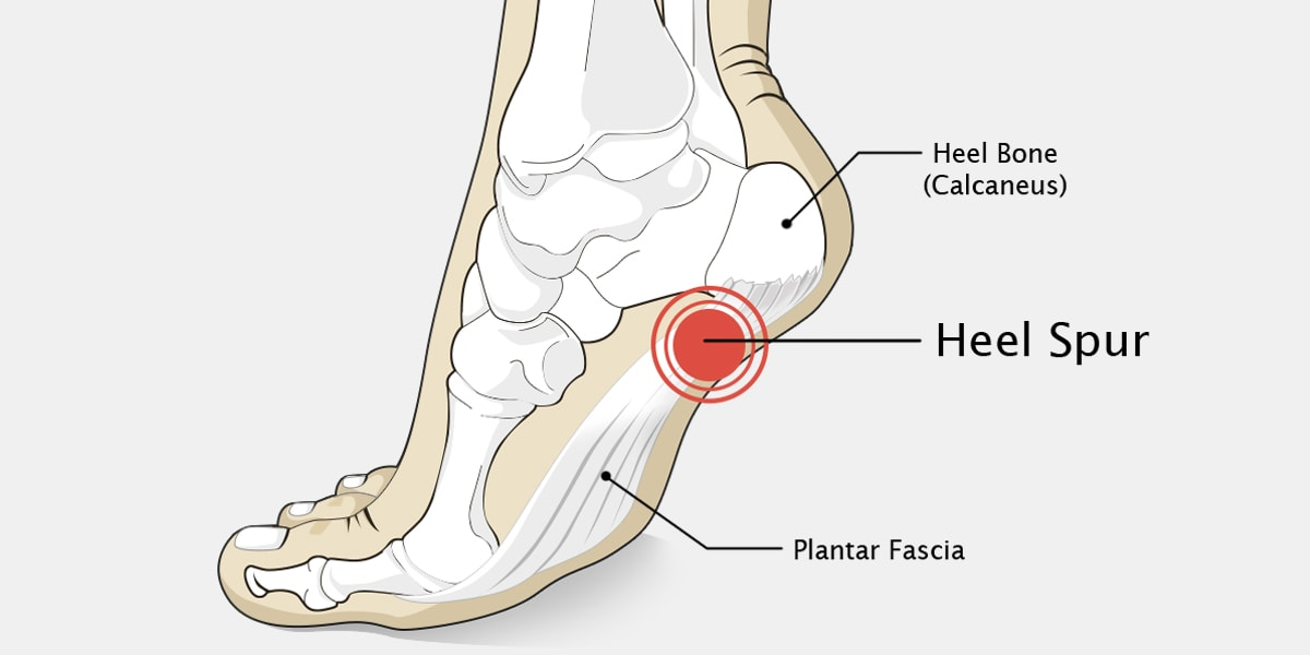 Heel Spur The Complete Injury Guide Vive Health