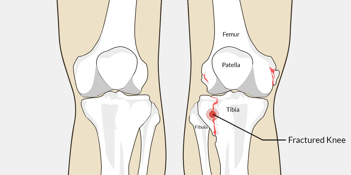 Fractured knee the complete injury guide vive health fractured knee diagram ccuart Gallery